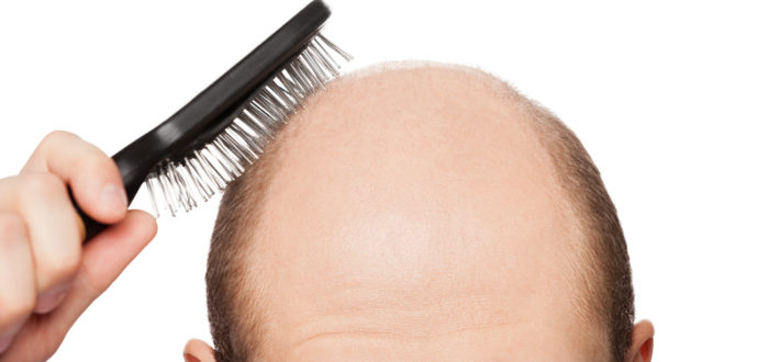 Is your hair loss leading to baldness? | Kalnirnay Blog